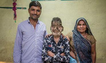"""Индийский школьник из-за редкой болезни превратился в """"оборотня""""."""