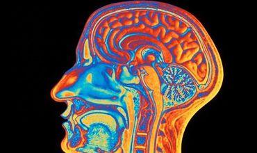 Ученые объяснили причину превосходства мозга человека.