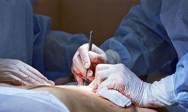В  99% случаев в статьях нет упоминаний о том, что донор давал свое согласие на операцию перед пересадкой органов.