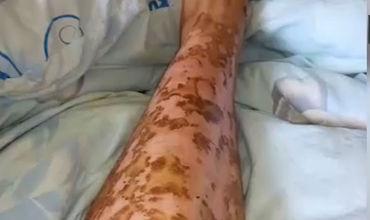 В России женщине сожгли ноги на сеансе эпиляции