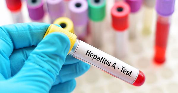 Peste 15.000 pacienți, tratați definitiv de hepatită în ultimii ani thumbnail