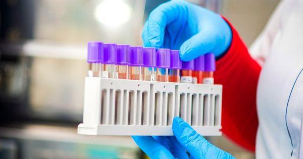 Новых случаев коронавируса в Приднестровье не выявлено thumbnail