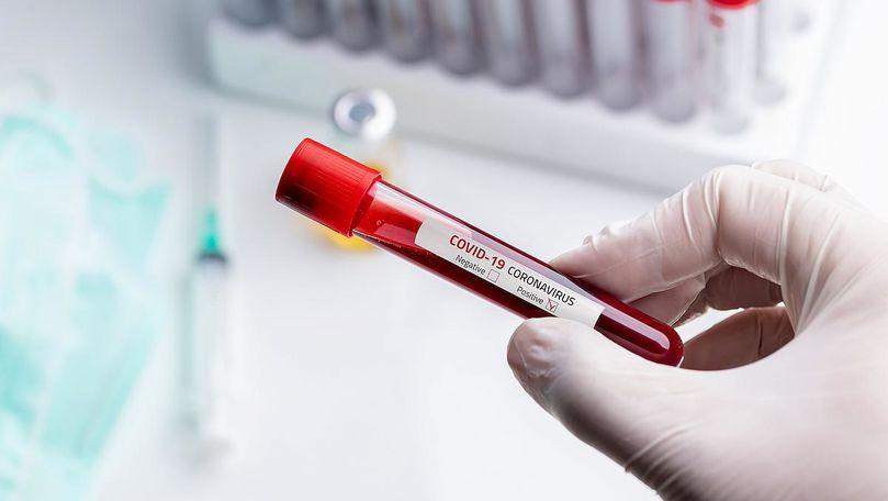 Bilanț: Încă 647 de infectați. Cine sunt noile 14 victime ale virusului