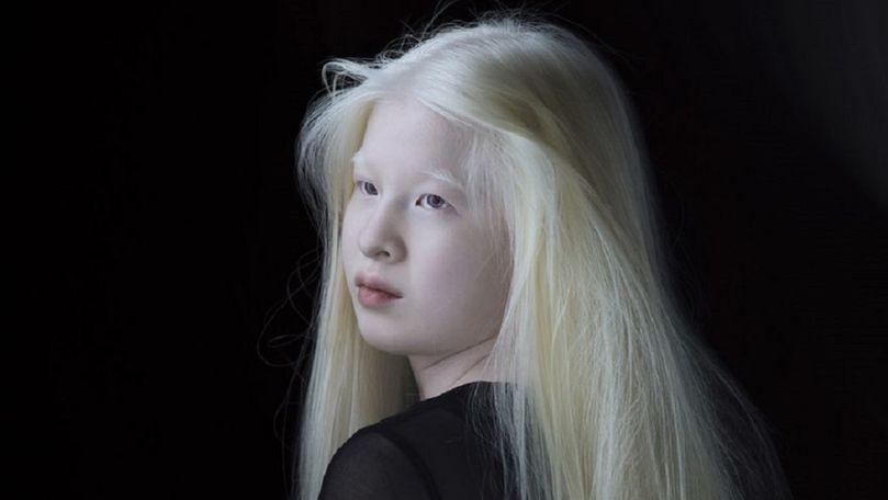Fetiță, abandonată pentru că s-a născut cu albinism. Povestea unui model