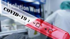 Bilanț: Încă 394 de infectați în R. Moldova. Topul regiunilor afectate